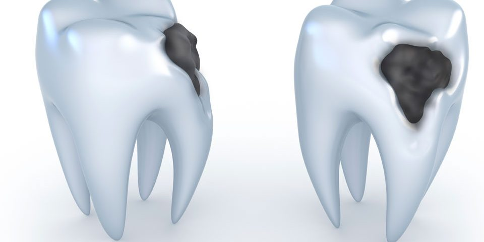 cavity teeth illustration