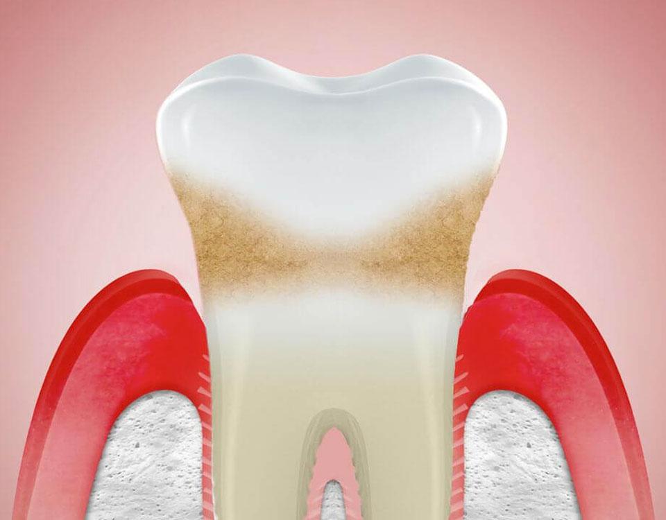 receding gums information